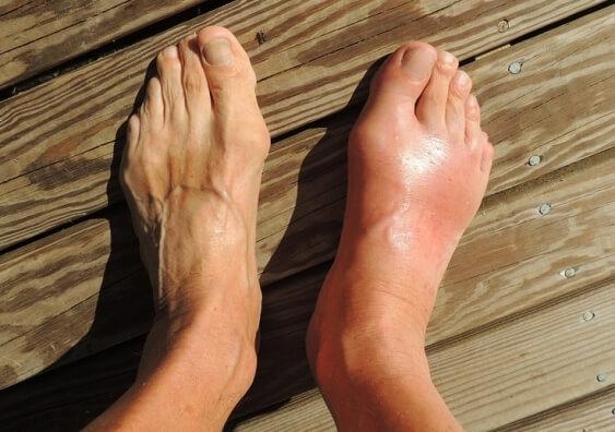 Gout Uric Acid Treatment