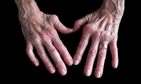 Osteoarthritis Treatment in Gurgoan