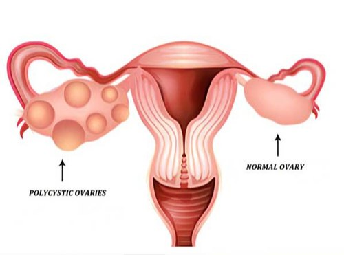 Pcos Pcod Menstrual Disorder Treatment