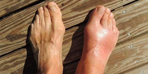 gout-uric-acid-treatment-img3