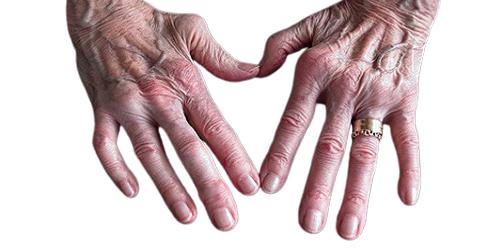 osteoarthritis-treatment-in-gurgoan-img19