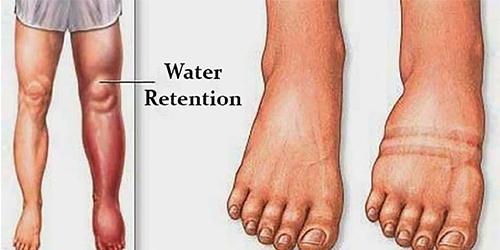 Water Retention Plan